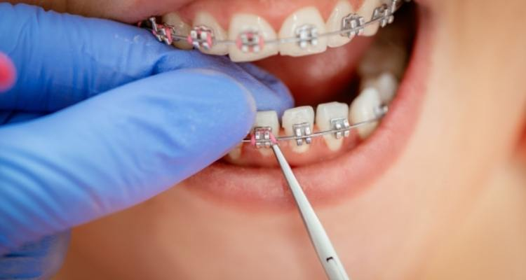 Common Braces Mistakes